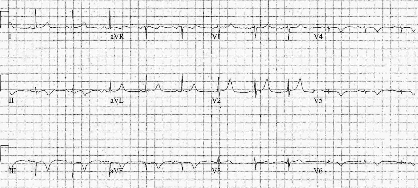 ECG Case 081a LITFL Top 100 EKG