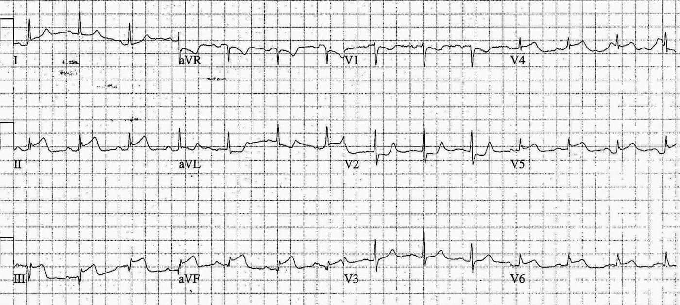 ECG Case 081b LITFL Top 100 EKG