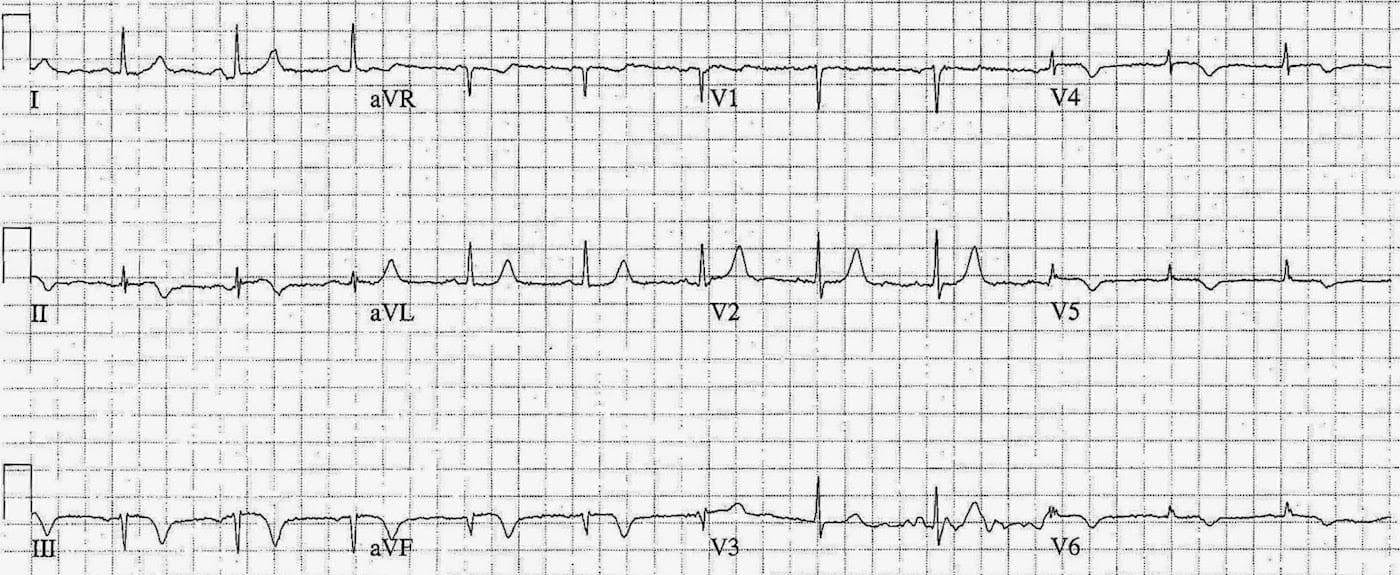 ECG Case 081c LITFL Top 100 EKG