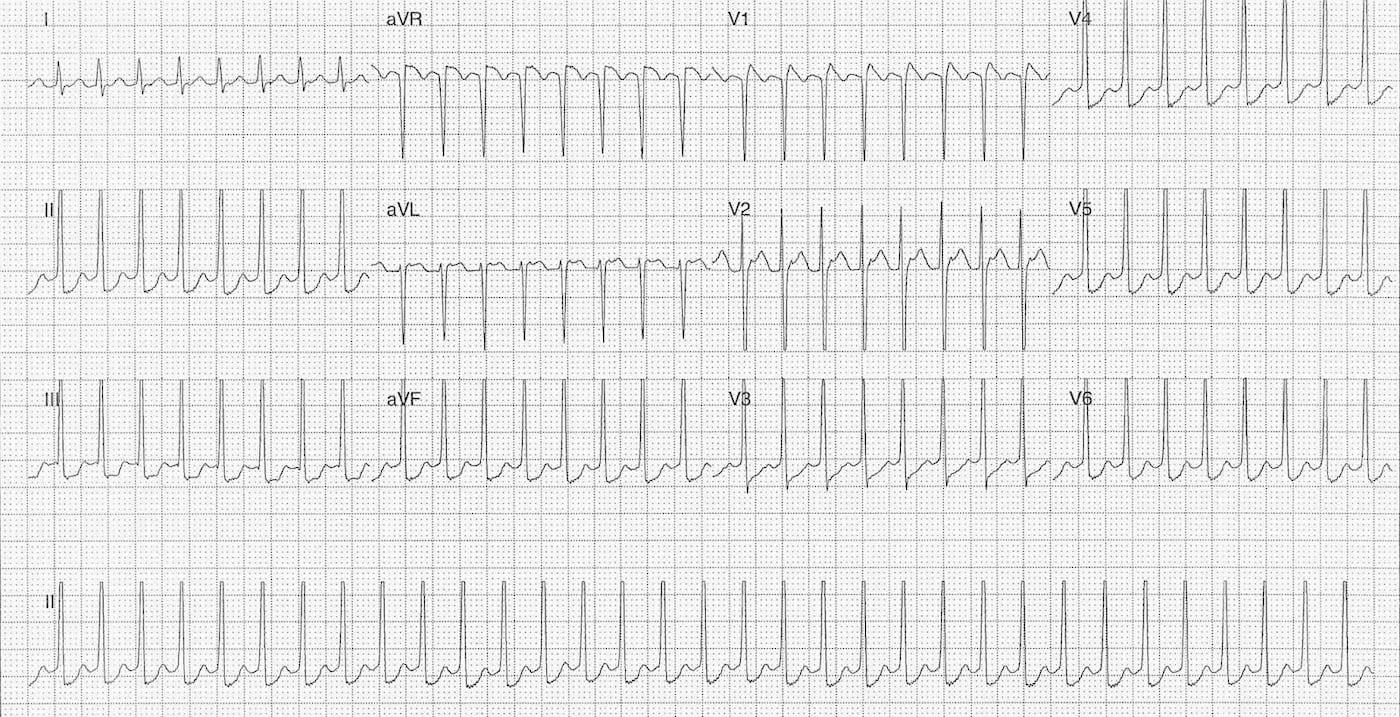 ECG Case 082 LITFL Top 100 EKG