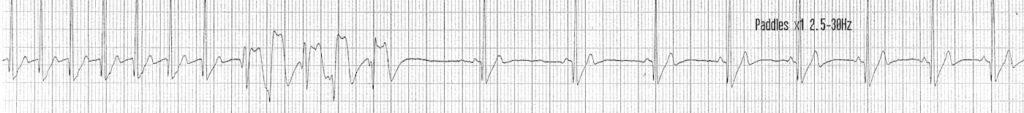 ECG Case 082b LITFL Top 100 EKG