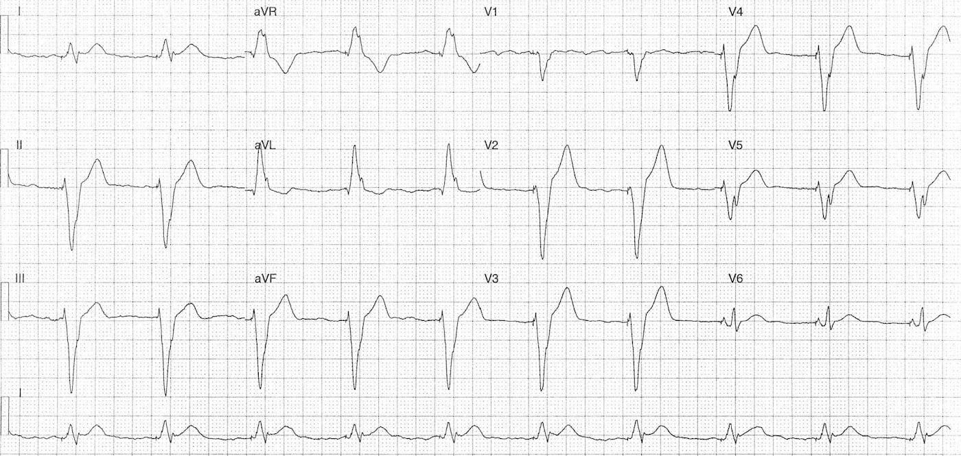 ECG Case 084a LITFL Top 100 EKG