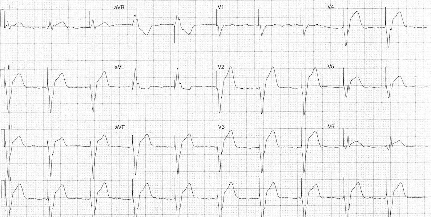 ECG Case 084b LITFL Top 100 EKG