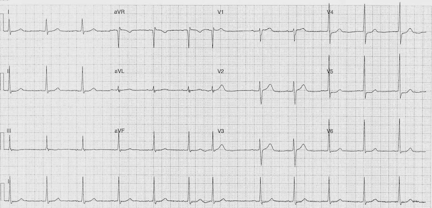 ECG Case 085a LITFL Top 100 EKG