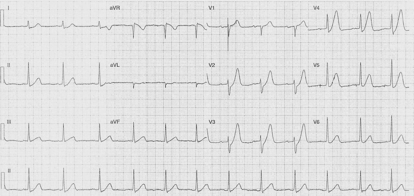 ECG Case 085b LITFL Top 100 EKG