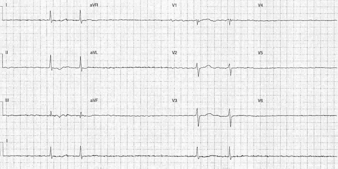 ECG Case 086 LITFL Top 100 EKG