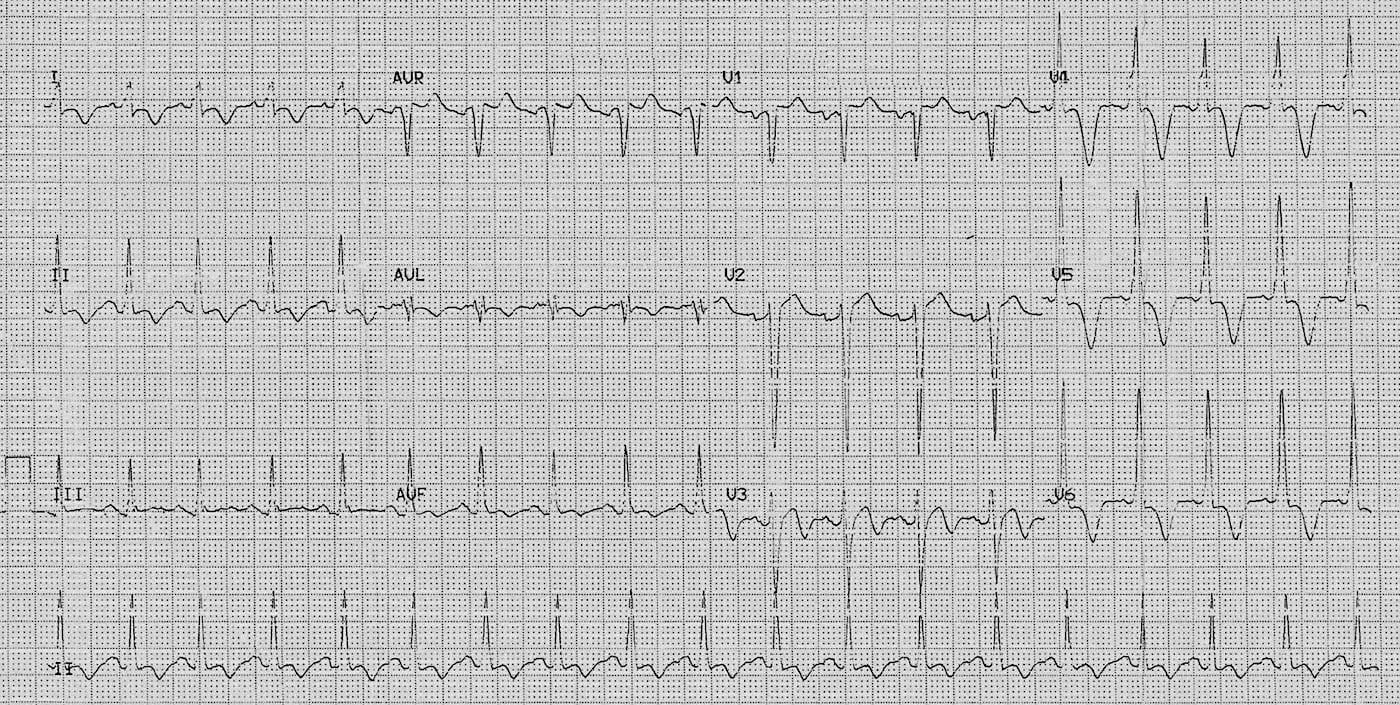 ECG Case 087 LITFL Top 100 EKG