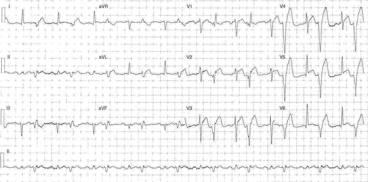 ECG Case 089a LITFL Top 100 EKG