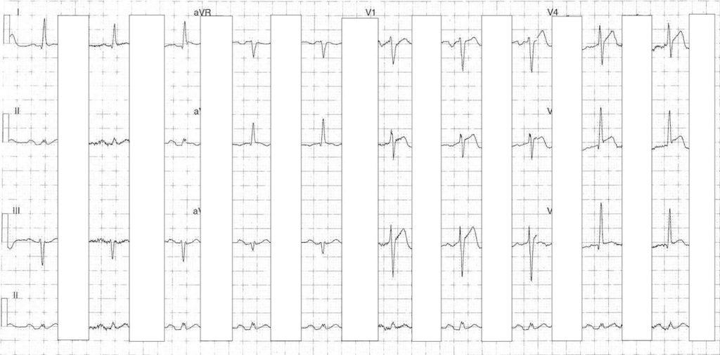 ECG Case 089b LITFL Top 100 EKG