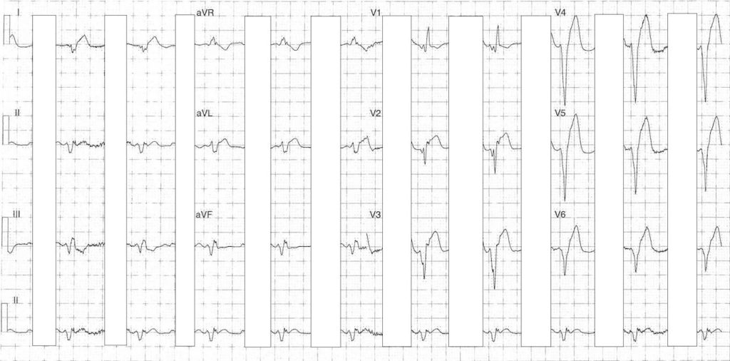 ECG Case 089c LITFL Top 100 EKG