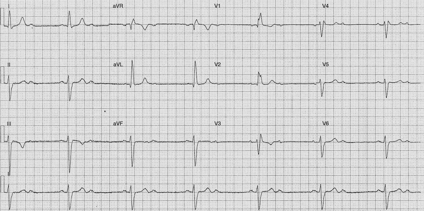 ECG Case 090 LITFL Top 100 EKG