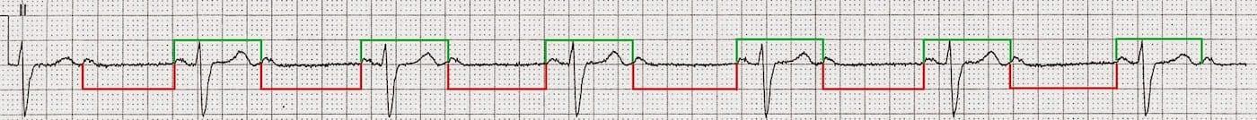 ECG Case 090b LITFL Top 100 EKG
