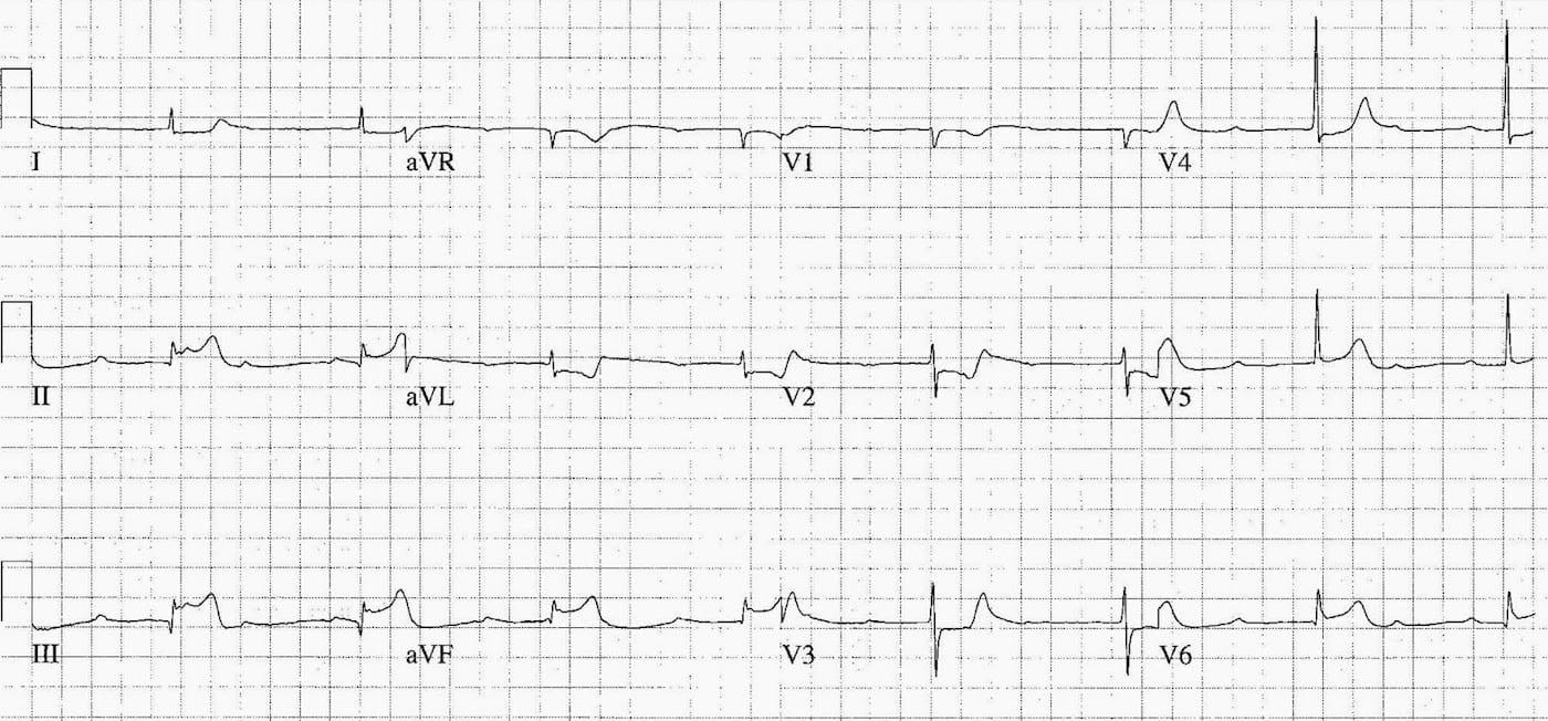 ECG Case 091 LITFL Top 100 EKG