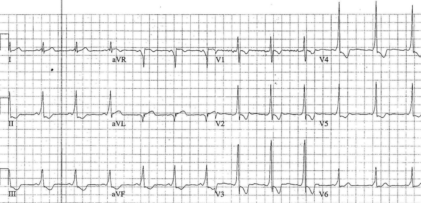 ECG Case 092a LITFL Top 100 EKG