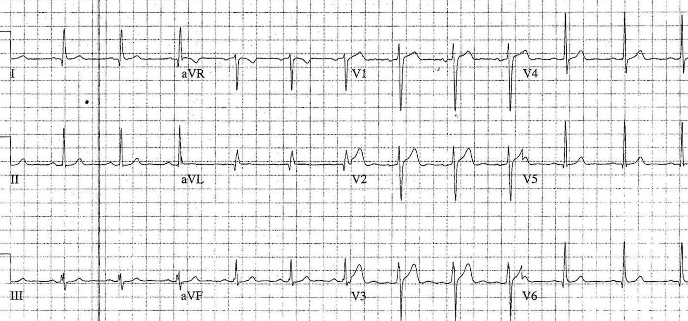 ECG Case 092b LITFL Top 100 EKG