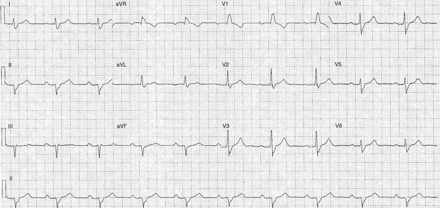 ECG Case 094 LITFL Top 100 EKG