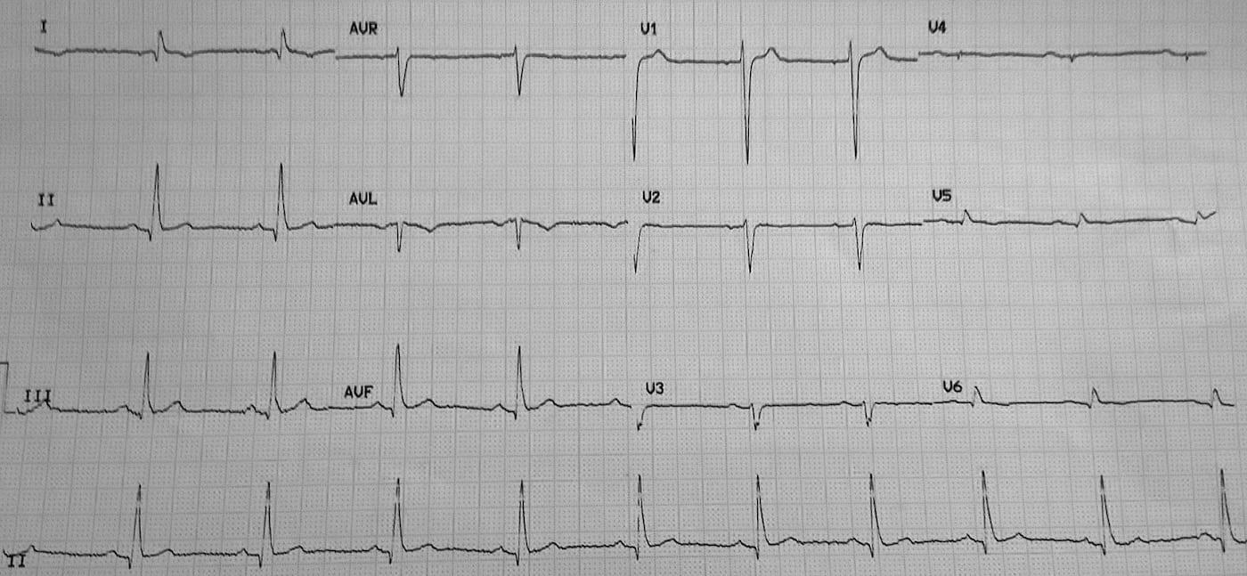 ECG Case 095 LITFL Top 100 EKG