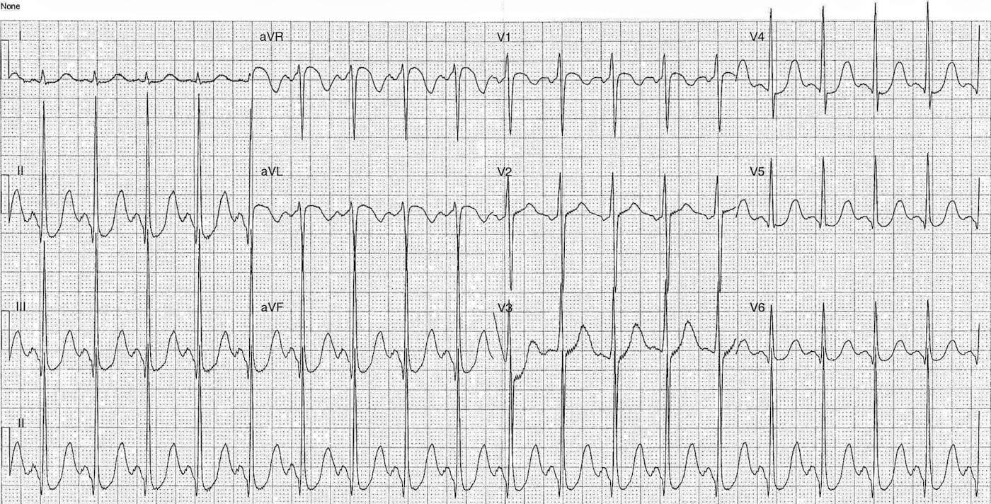 ECG Case 096 LITFL Top 100 EKG