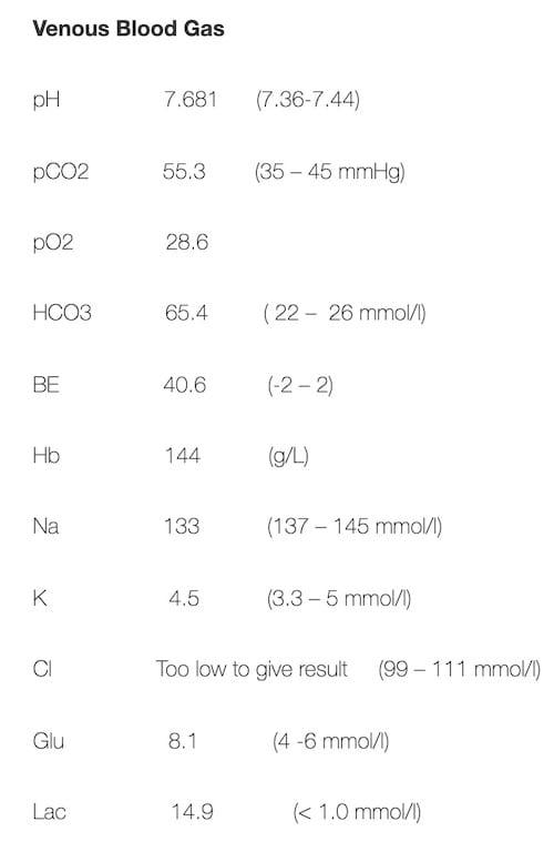 ECG Case 096 VBG result