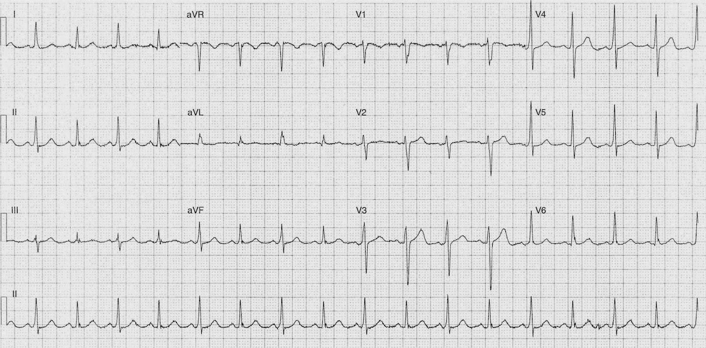ECG Case 097a LITFL Top 100 EKG