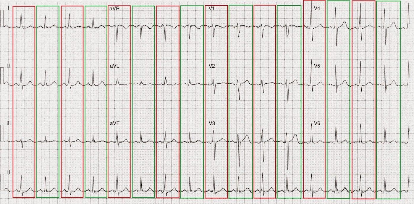 ECG Case 097b LITFL Top 100 EKG