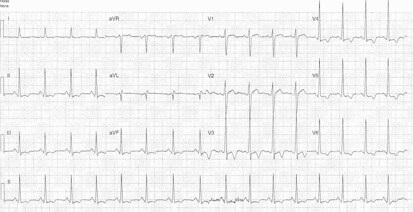 ECG Case 098 LITFL Top 100 EKG