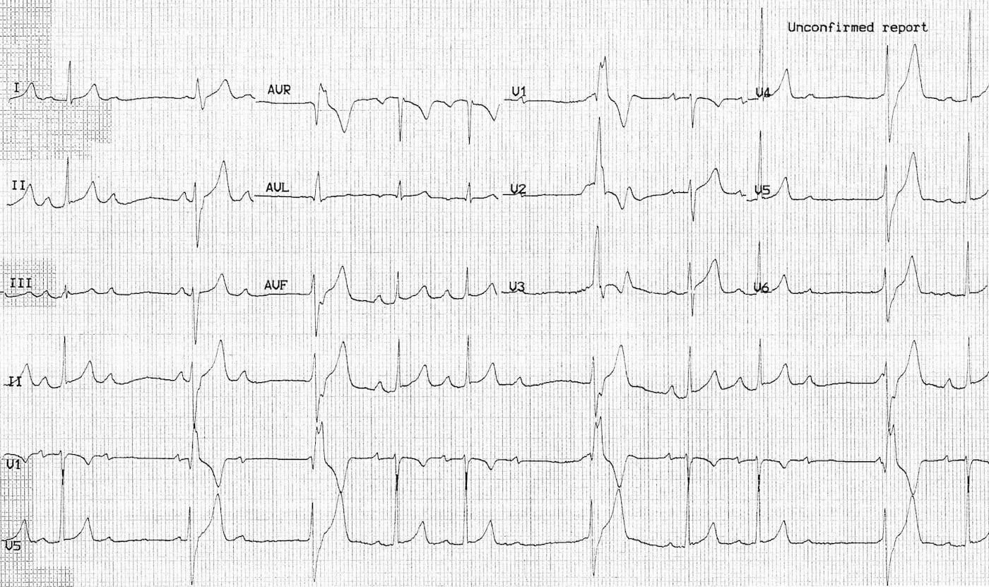 ECG Case 099 LITFL Top 100 EKG