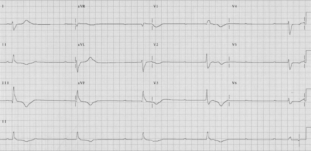 ECG Complete heart block CHB