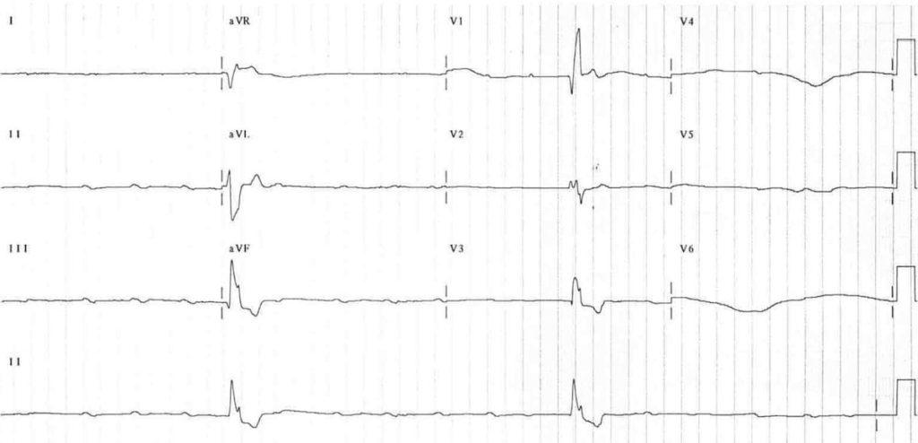 ECG Complete heart block CHB 2