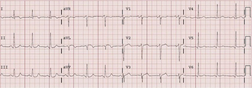 ECG Completed high lateral AMI