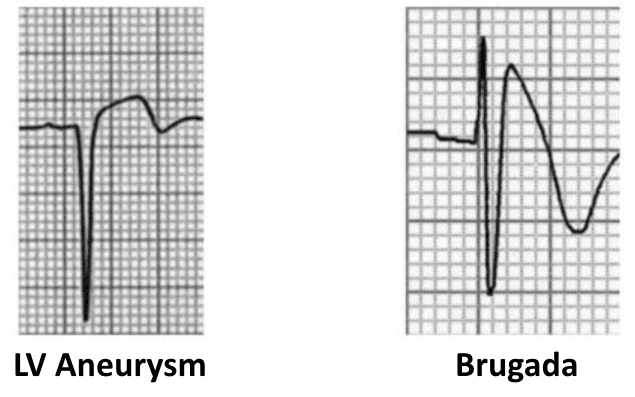 ECG-Complex-ST-segment-elevation-in- Brugada