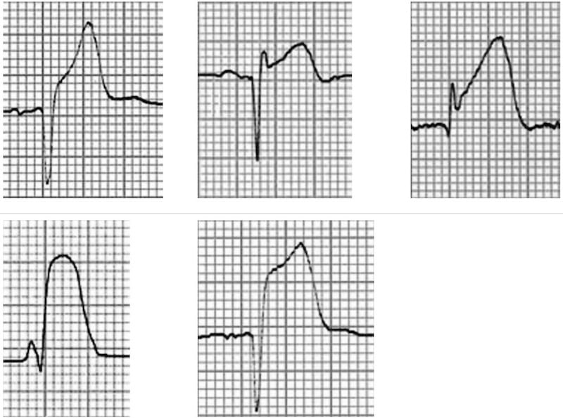 ECG Complex ST segment elevation