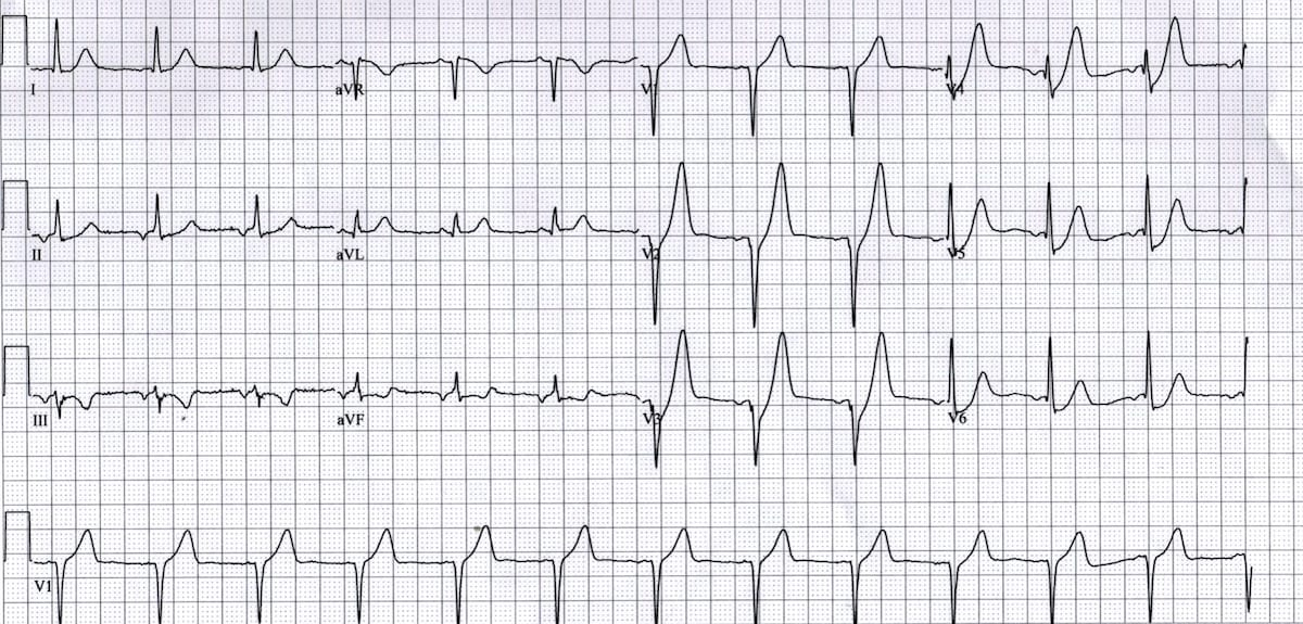 ECG De Winter T Waves 1