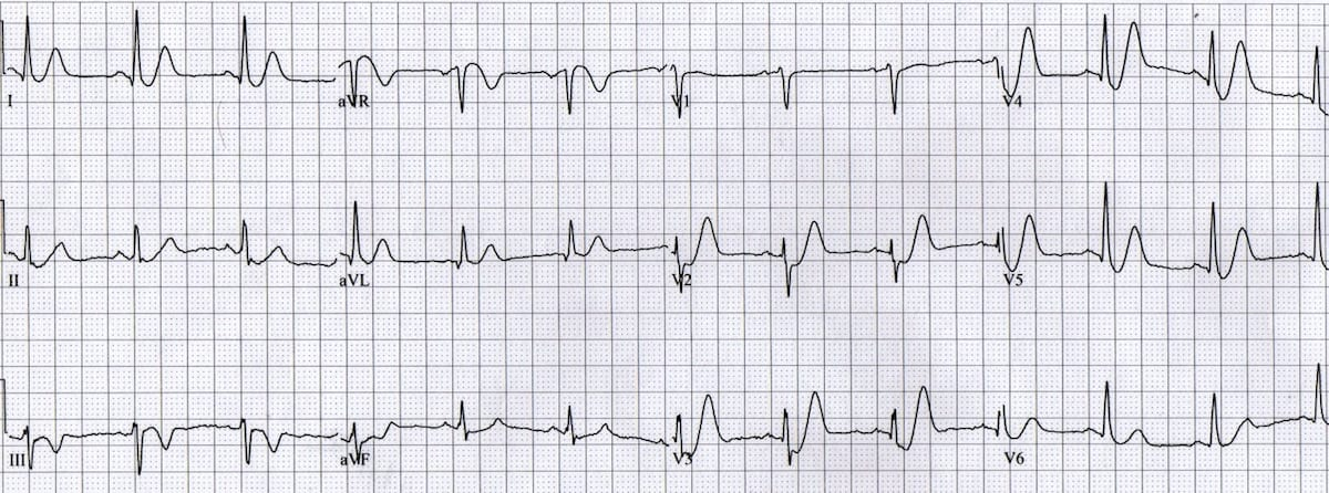 ECG De Winter T Waves 2