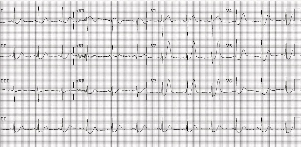 ECG De Winter T Waves 3