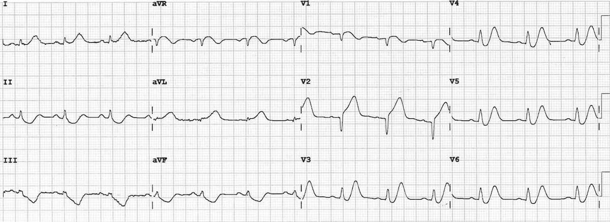 ECG De Winter T Waves 4