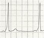 ECG Delta wave 1