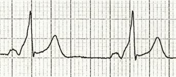 ECG Delta wave 3