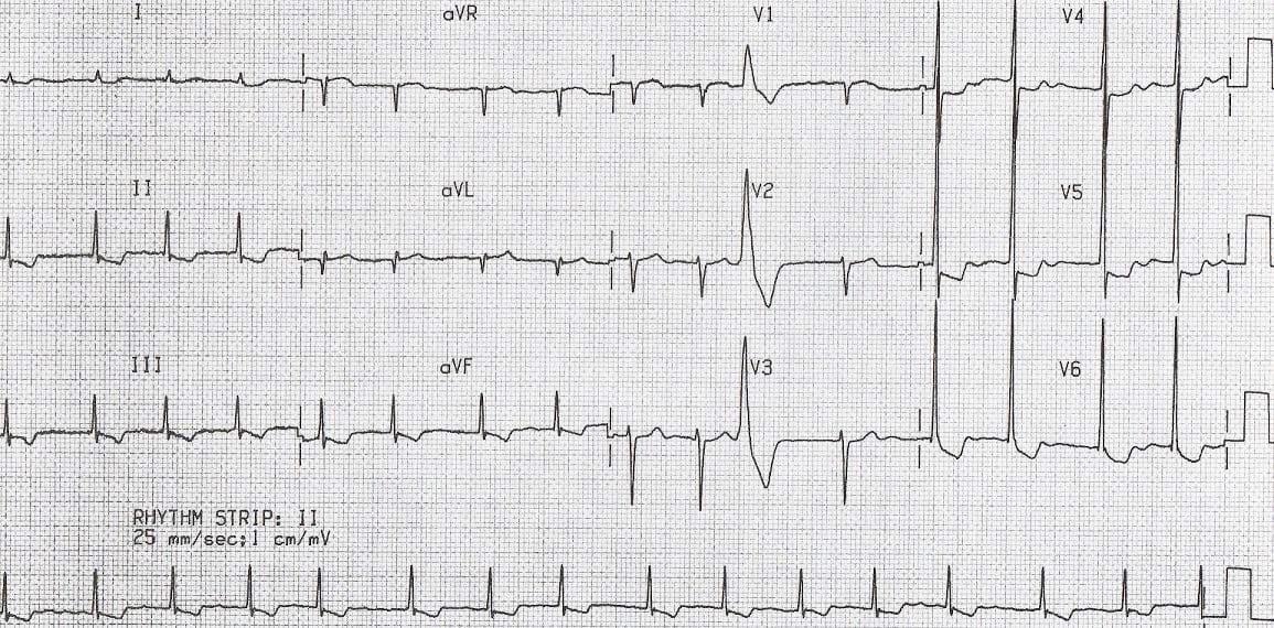 ECG Digoxin short QT