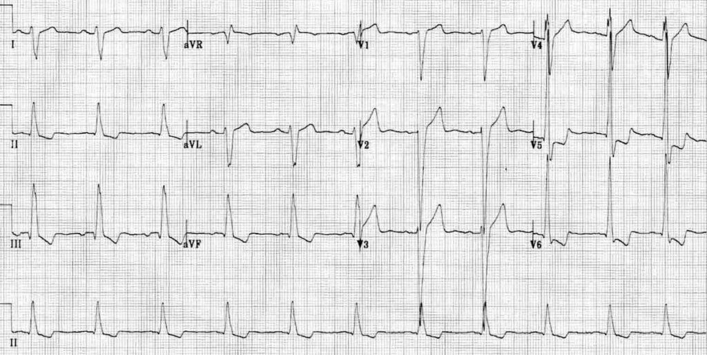 ECG Dilated cardiomyopathy Biventricular hypertrophy