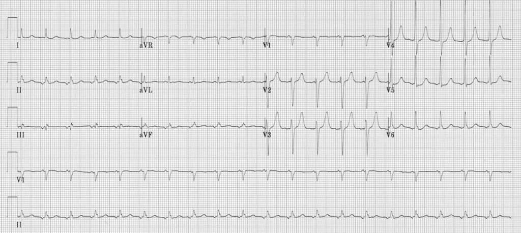ECG Ectopic atrial tachycardia inverted p waves