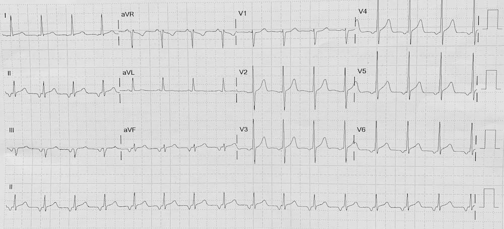 ECG Ectopic atrial tachycardia inverted p waves 2