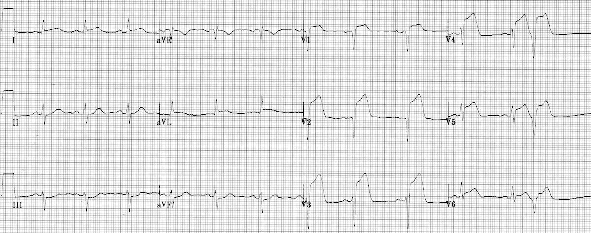 ECG Extensive Anterior STEMI (acute)