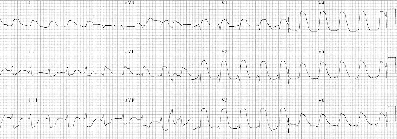 "ECG Extensive anterior MI (""tombstoning"" pattern)"