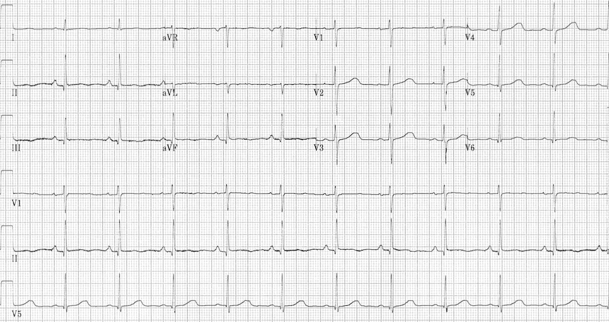 ECG Fast-Slow-3-resolved 2