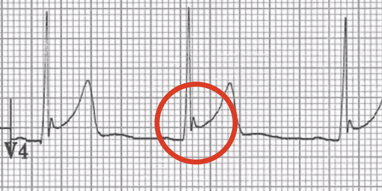 ECG Fish-hook pattern BER