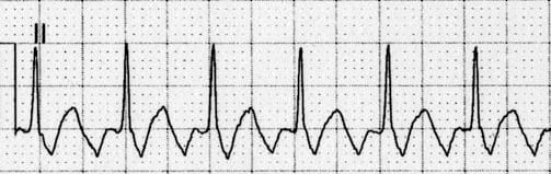 ECG Flutter waves in II.