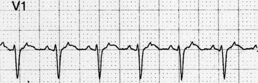 ECG Flutter waves in V1