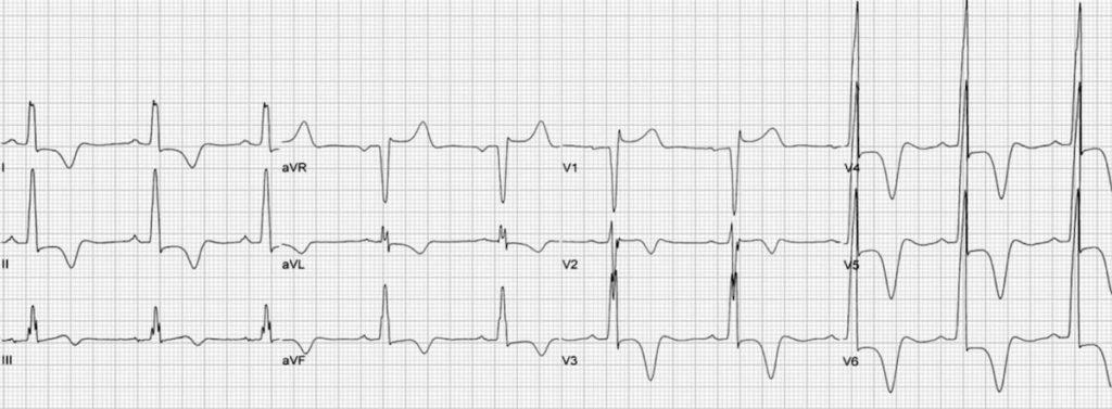 ECG HCM Apical