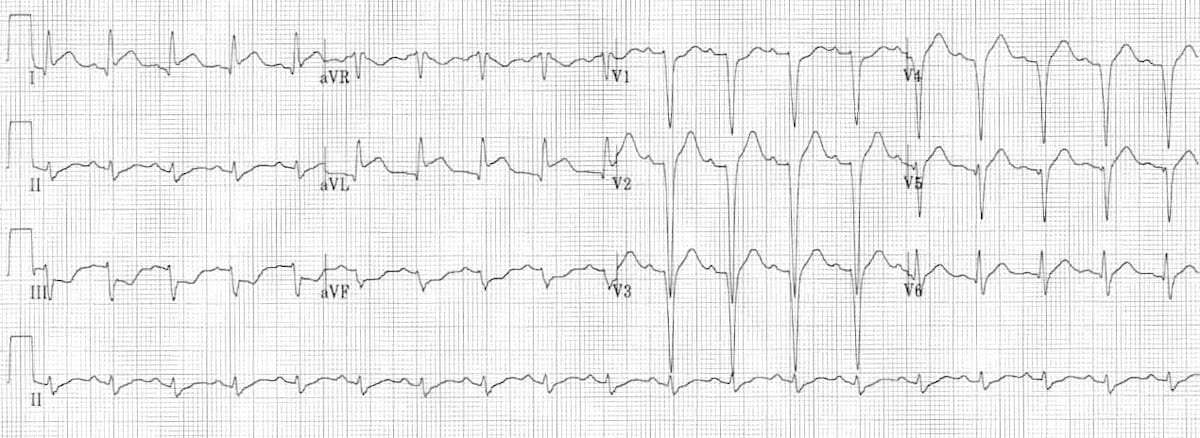 ECG-High-Lateral-STEMI-2